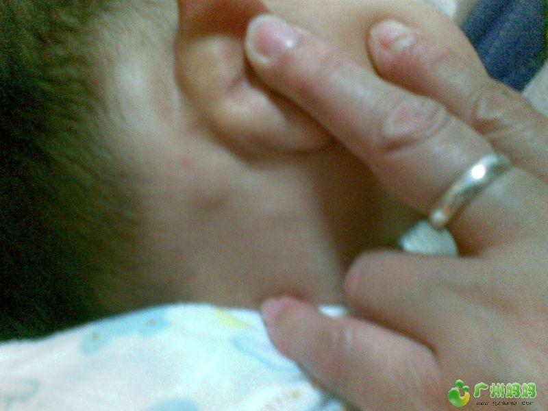 1岁宝宝耳后有淋巴结怎么办 婴幼育儿